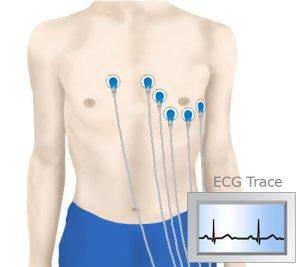 ecg-trace